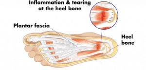 Stretch plantar fasciitis