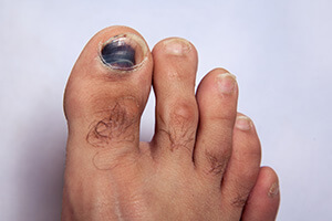 Are Bruised Toenails Common