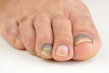 Bruised Toenail: Learn About Its Causes, Treatment and Prevention
