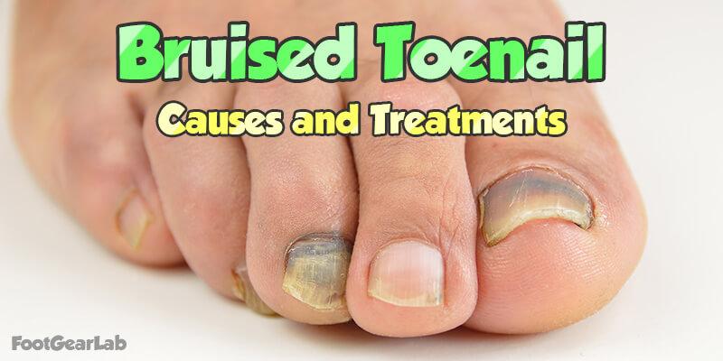 Home Remedies For Bruised Toenail