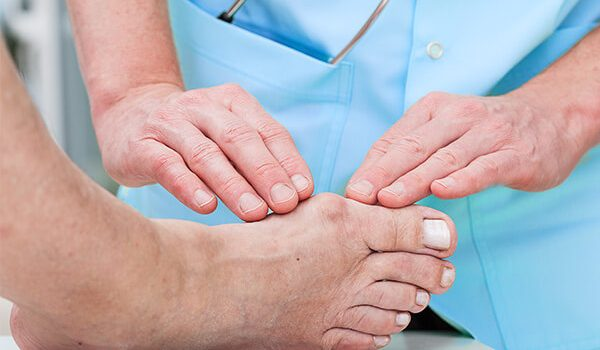 Lumps and Bumps on Side of Foot: Top Causes and Remedies