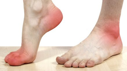 Pain on Outside of Foot: Learn About Its Causes, Diagnosis & Treatment