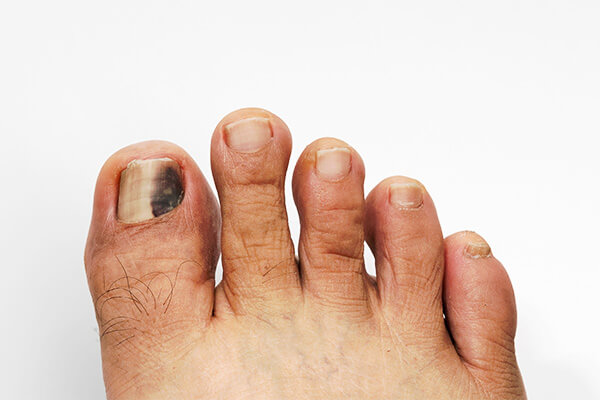 Black Spot on Toenail: Causes, Treatments, and Home Remedies