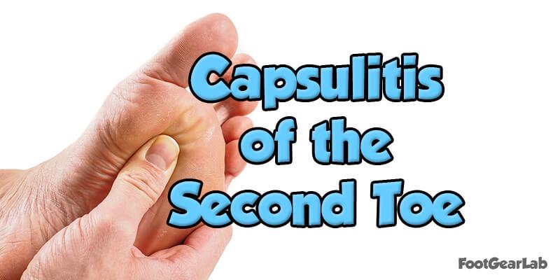 Capsulitis of the Second Toe