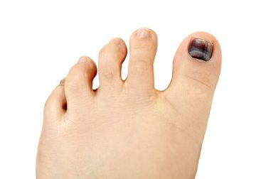 Black Toenail Fungus: Causes, Home Remedies, Treatments and More