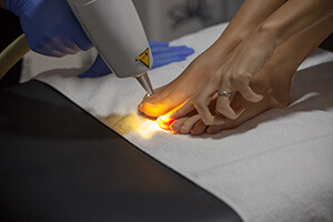 Laser toenail fungus treatment