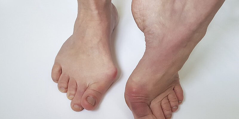 14 Simple Yet Effective Foot Exercises for Bunions