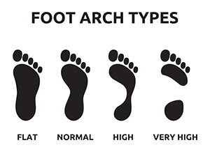 What are the Different Foot Arch Types