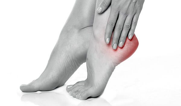Stretching and Strengthening Exercises for Plantar Fasciitis